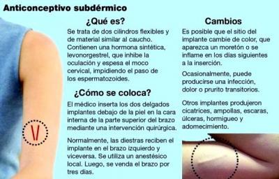 20140507183201-anticonceptivos.jpg